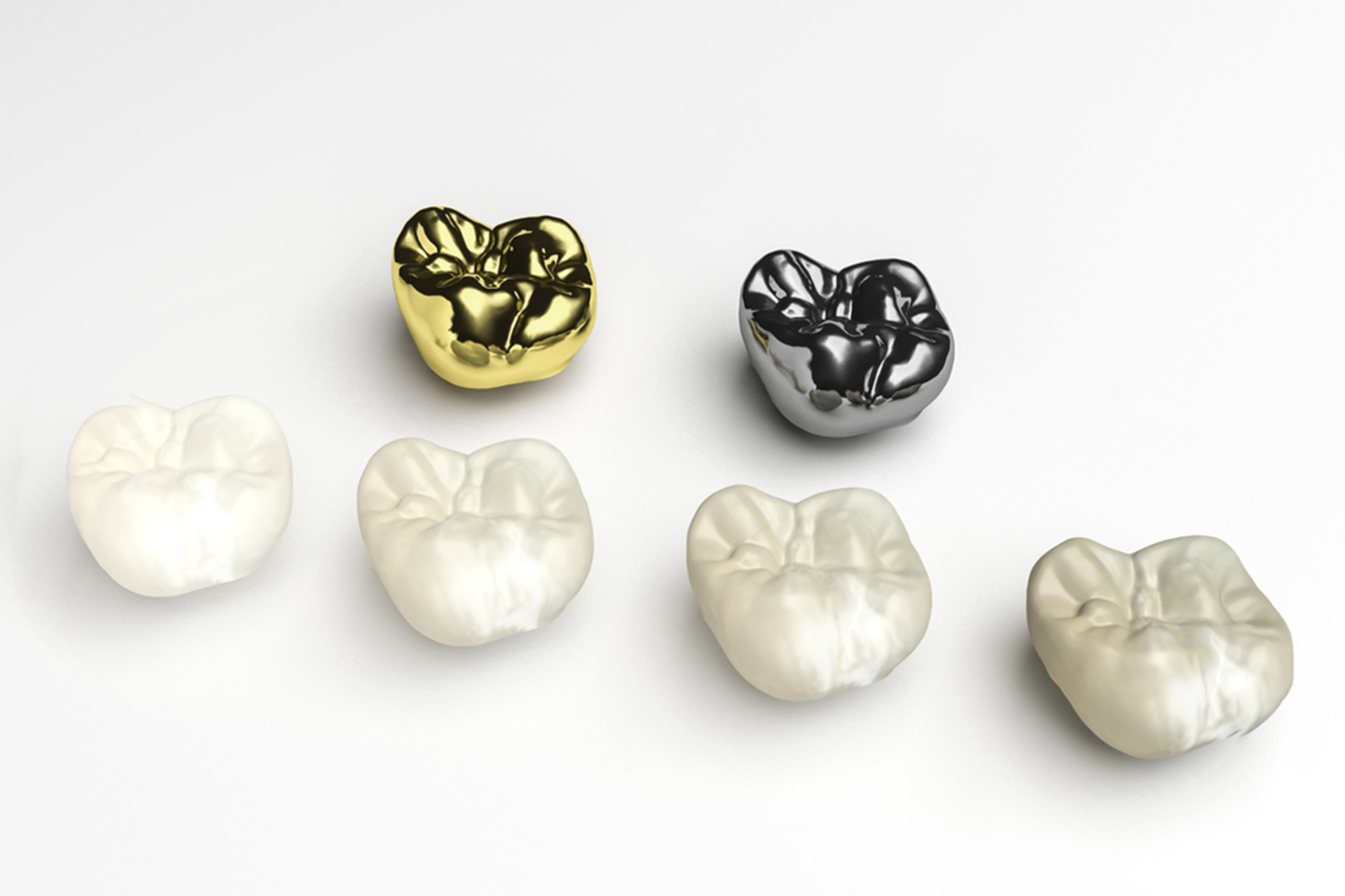 which-dental-crown-material-is-best