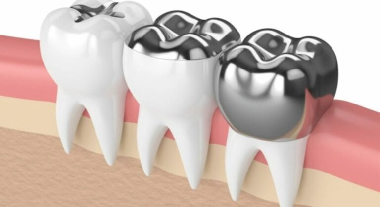 busting-common-myths-about-dental-crowns